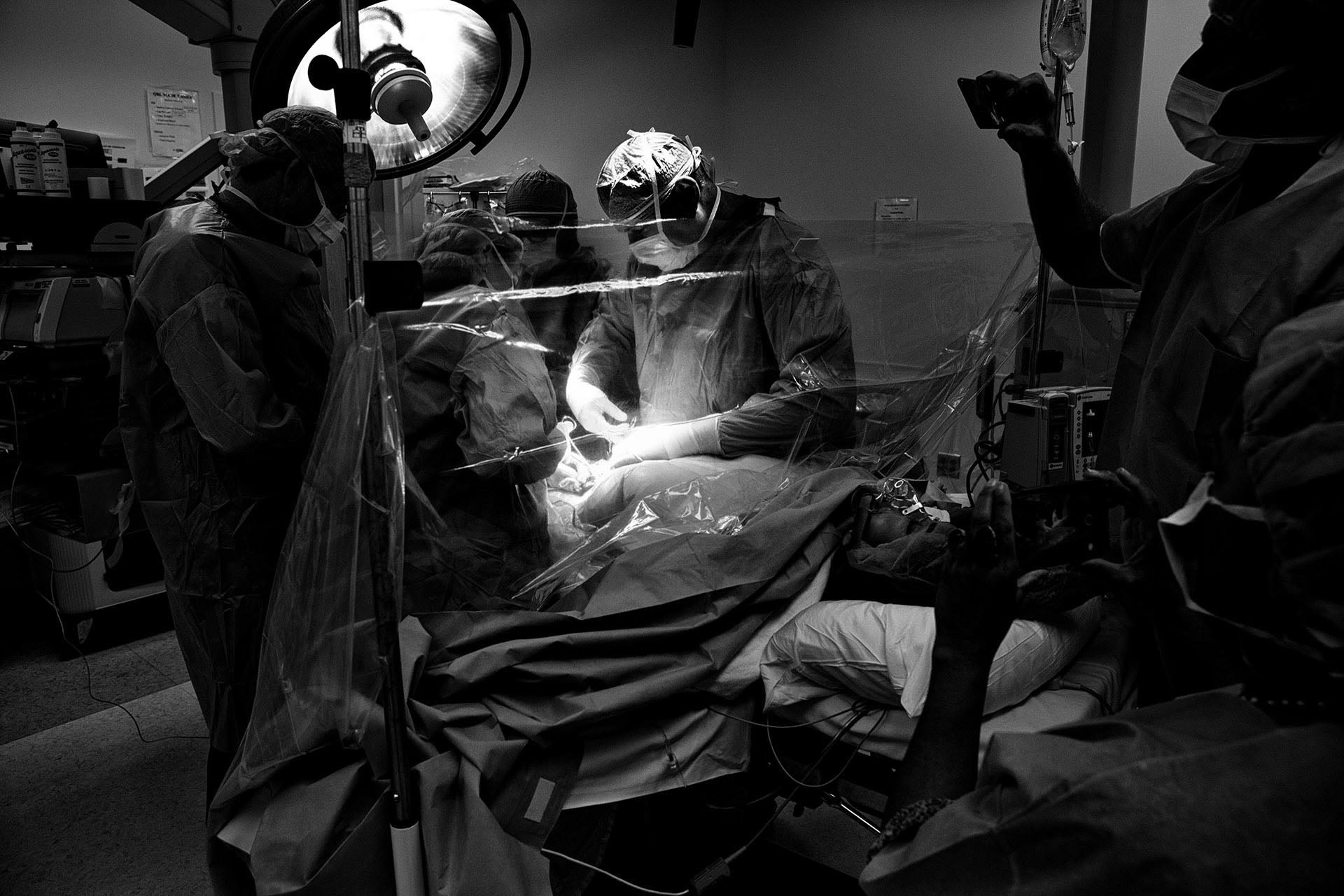 black and white birth photo of a cesarean birth bu Santa Monica birth photographer, Leona Darnell